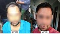 hair transplant Ludhiana result